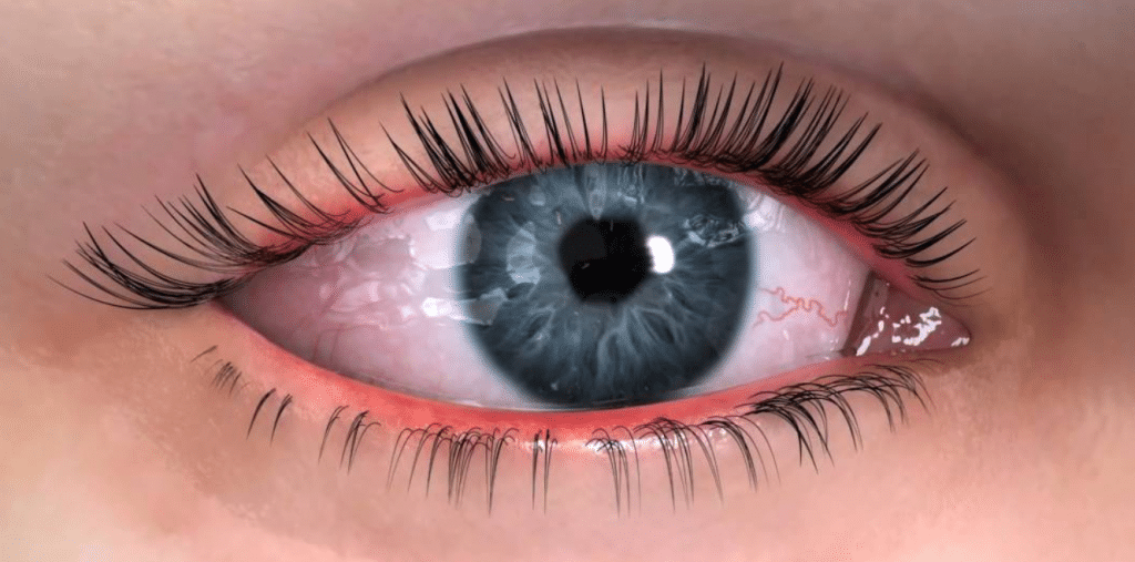 How to stop dry eye